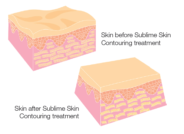 How Sublime™ Works