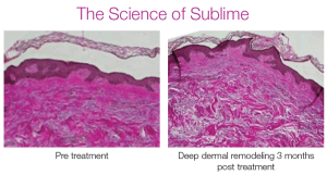 The Science Of Sublime