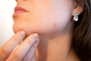 Microdermabrasion in Ottawa can help treat dull, aging, or scarred skin with medical-grade exfoliation.